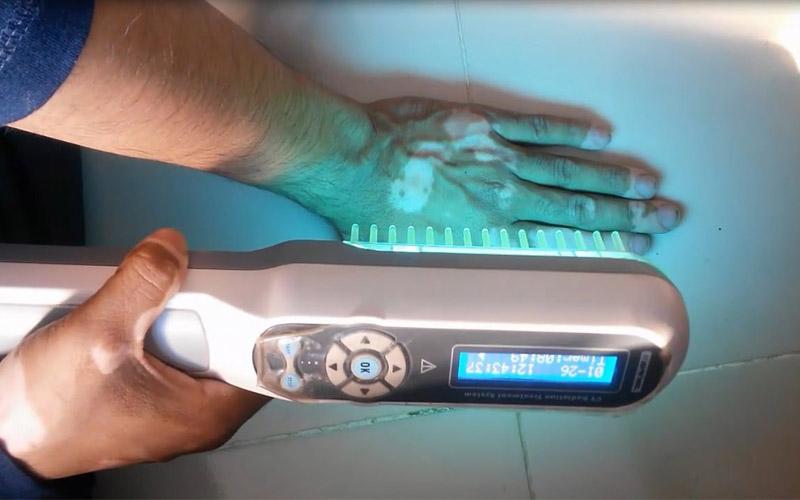 Vitiligo-Behandlung: Wie Licht dabei hilft